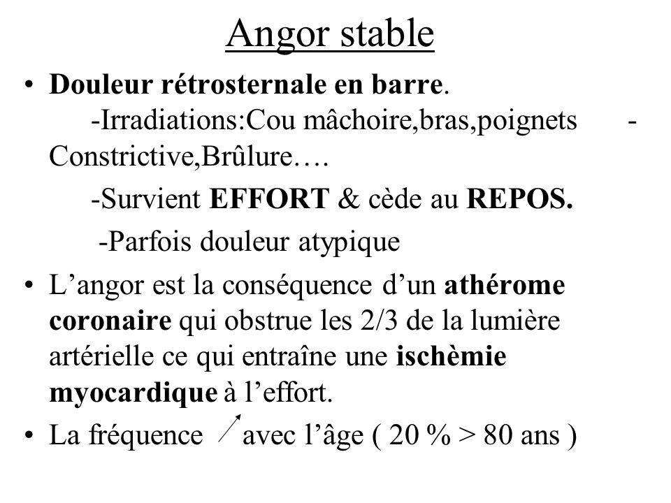 Angor stable Douleur rétrosternale en barre. -Irradiations:Cou mâchoire,bras,poignets- Constrictive,Brûlure…. -Survient EFFORT & cède au REPOS. -Parfo