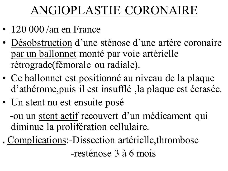 ANGIOPLASTIE CORONAIRE 120 000 /an en France Désobstruction dune sténose dune artère coronaire par un ballonnet monté par voie artérielle rétrograde(f