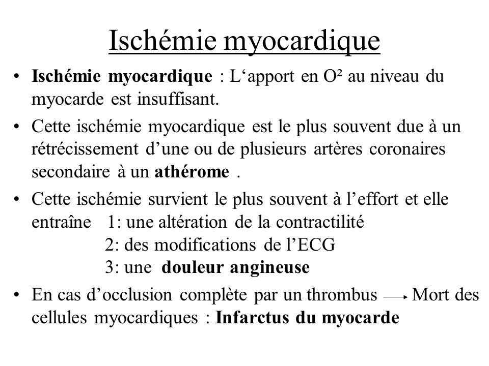 Ischémie myocardique Ischémie myocardique : Lapport en O² au niveau du myocarde est insuffisant. Cette ischémie myocardique est le plus souvent due à