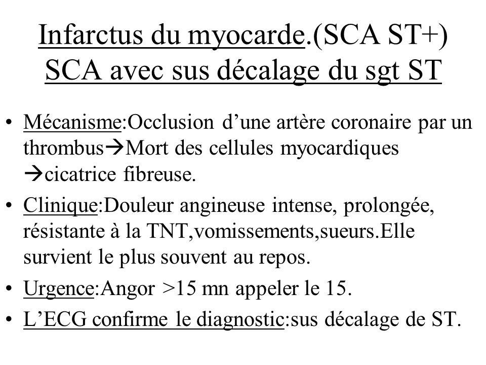 Infarctus du myocarde.(SCA ST+) SCA avec sus décalage du sgt ST Mécanisme:Occlusion dune artère coronaire par un thrombus Mort des cellules myocardiqu