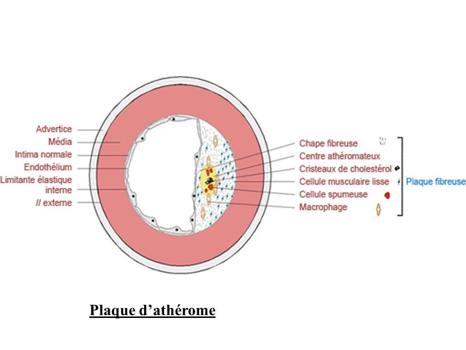 LAthérome - La formation de lathérome débute dès ladolescence par les Stries lipidiques ( dès lâge de 15 ans ).