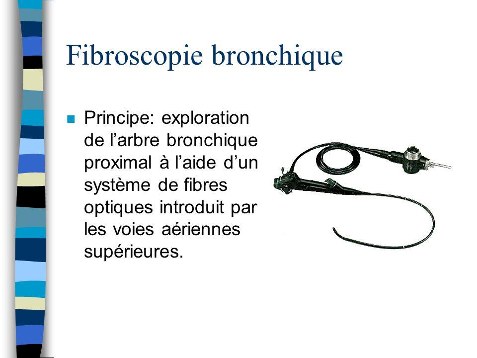 n Principe: exploration de larbre bronchique proximal à laide dun système de fibres optiques introduit par les voies aériennes supérieures.