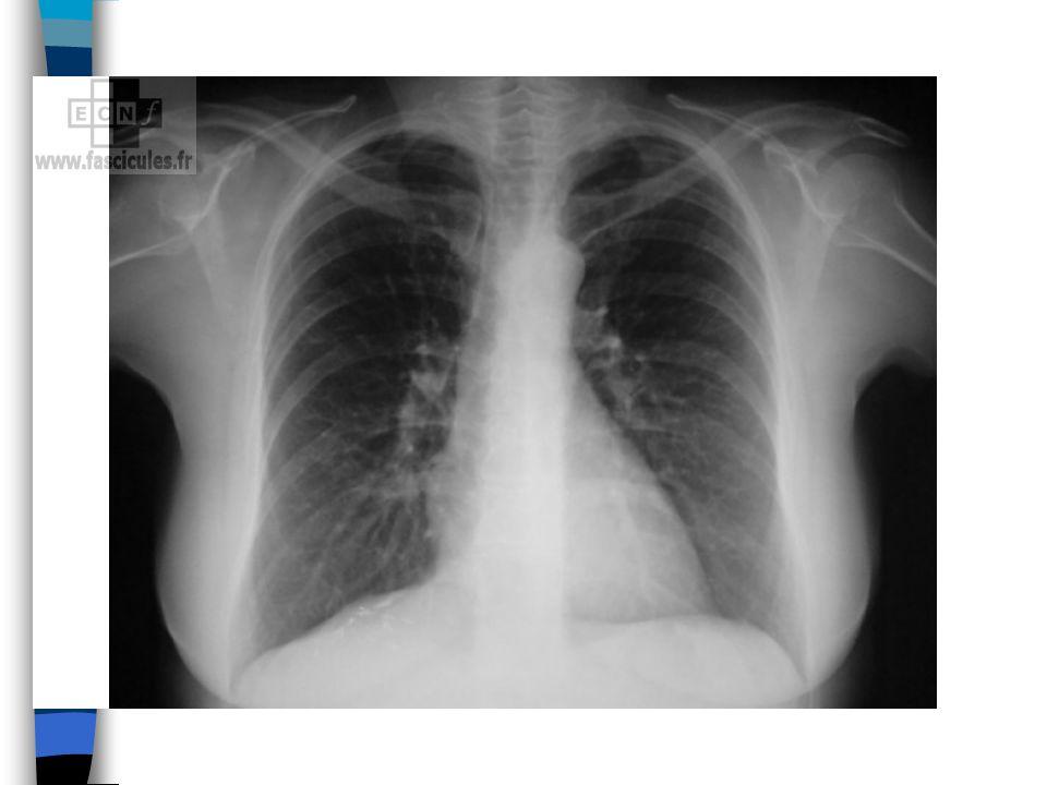 Ponction pleurale n Surveillance en cours de ponction –signes de pneumothorax: douleur, dyspnée, toux, issue dair dans la tubulure –malaise vagal: pâleur, sueurs, hypotension, bradycardie n Après la ponction –signes de pneumothorax –radio de thorax systématique
