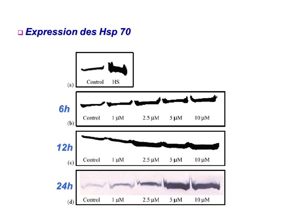 6h 12h 24h Expression des Hsp 70 Expression des Hsp 70