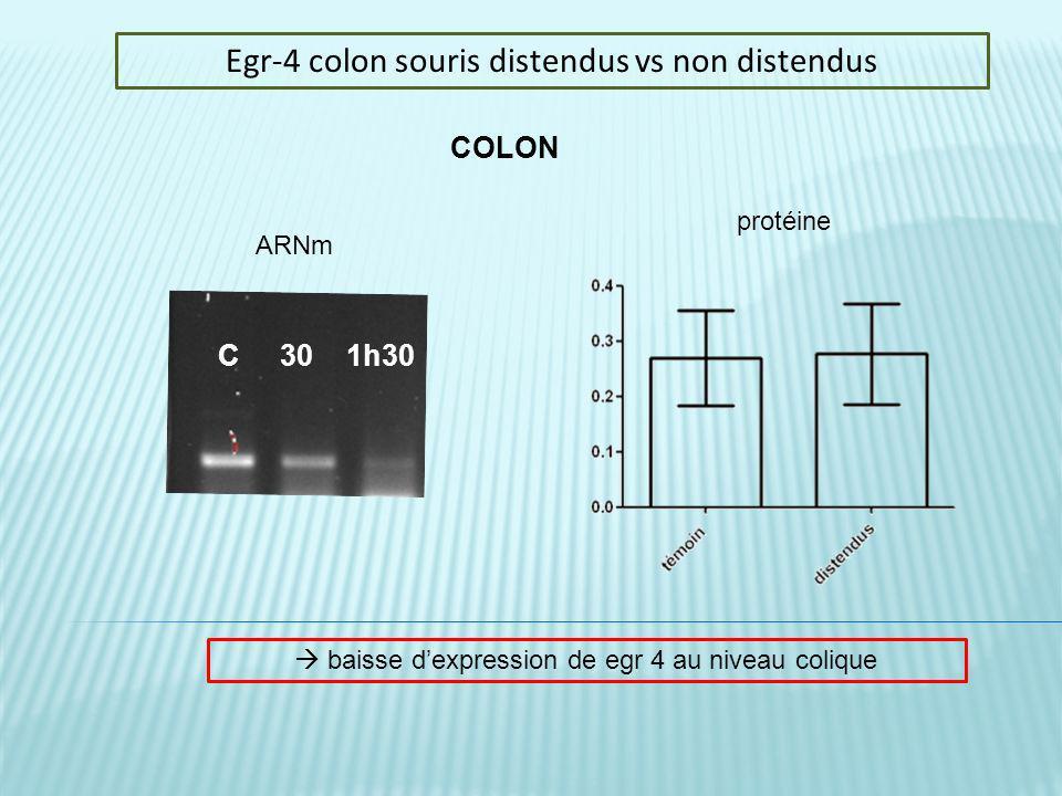 Egr-4 colon souris distendus vs non distendus C 30 1h30 COLON ARNm protéine baisse dexpression de egr 4 au niveau colique