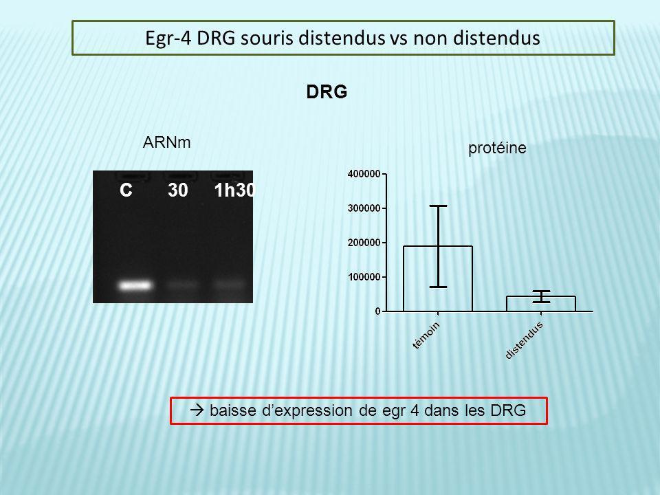 Egr-4 DRG souris distendus vs non distendus C 30 1h30 DRG ARNm protéine baisse dexpression de egr 4 dans les DRG