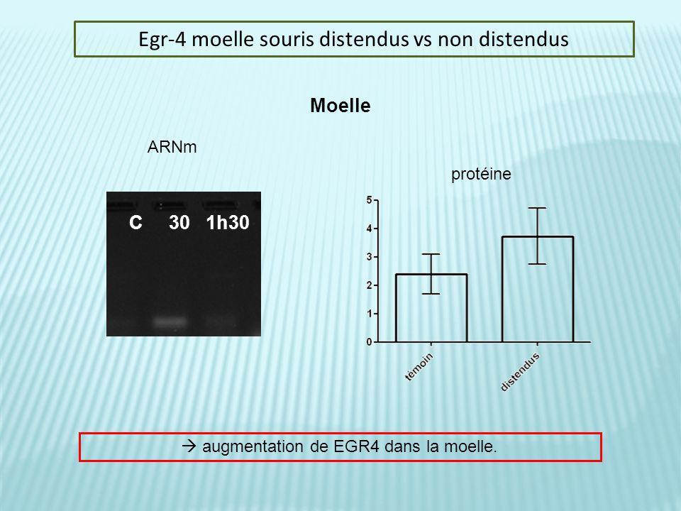 Egr-4 moelle souris distendus vs non distendus Moelle C 30 1h30 ARNm protéine augmentation de EGR4 dans la moelle.