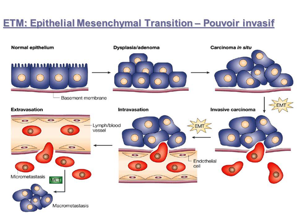 ETM: Epithelial Mesenchymal Transition – Pouvoir invasif