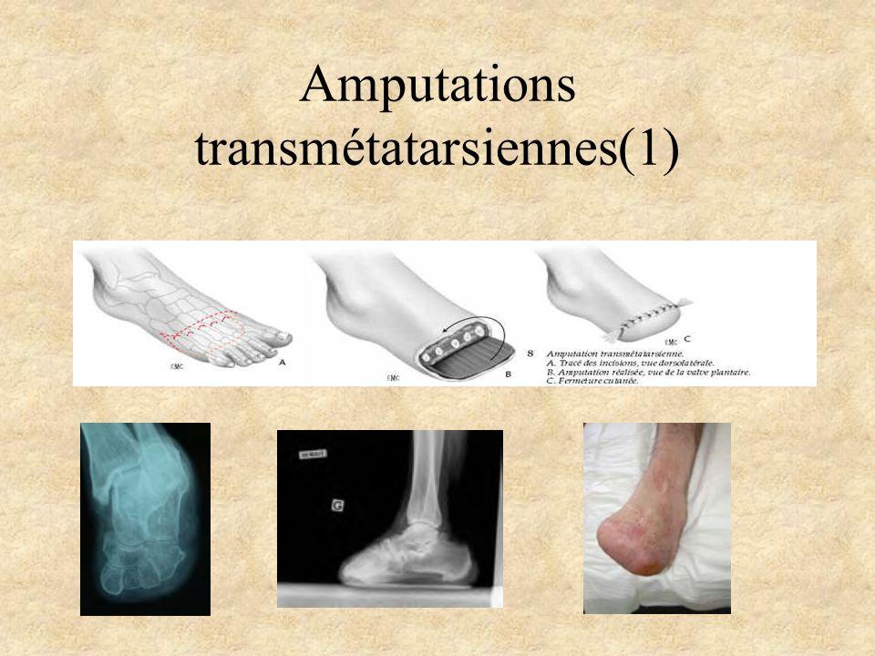 Amputations transmétatarsiennes(1)