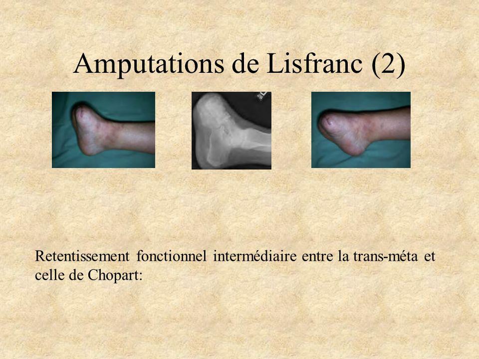 Amputations de Lisfranc (2) Retentissement fonctionnel intermédiaire entre la trans-méta et celle de Chopart: