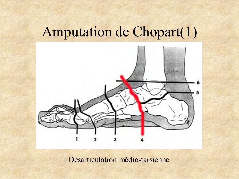 Amputation de Chopart(1) =Désarticulation médio-tarsienne