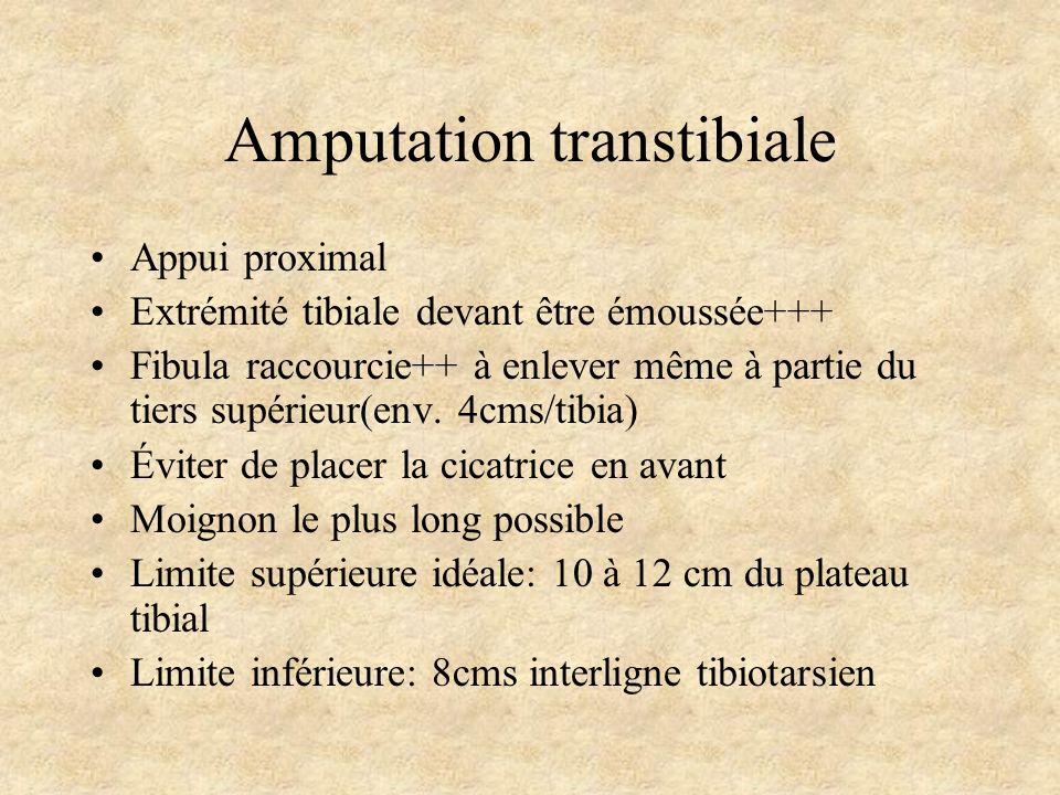 Amputation transtibiale Appui proximal Extrémité tibiale devant être émoussée+++ Fibula raccourcie++ à enlever même à partie du tiers supérieur(env. 4