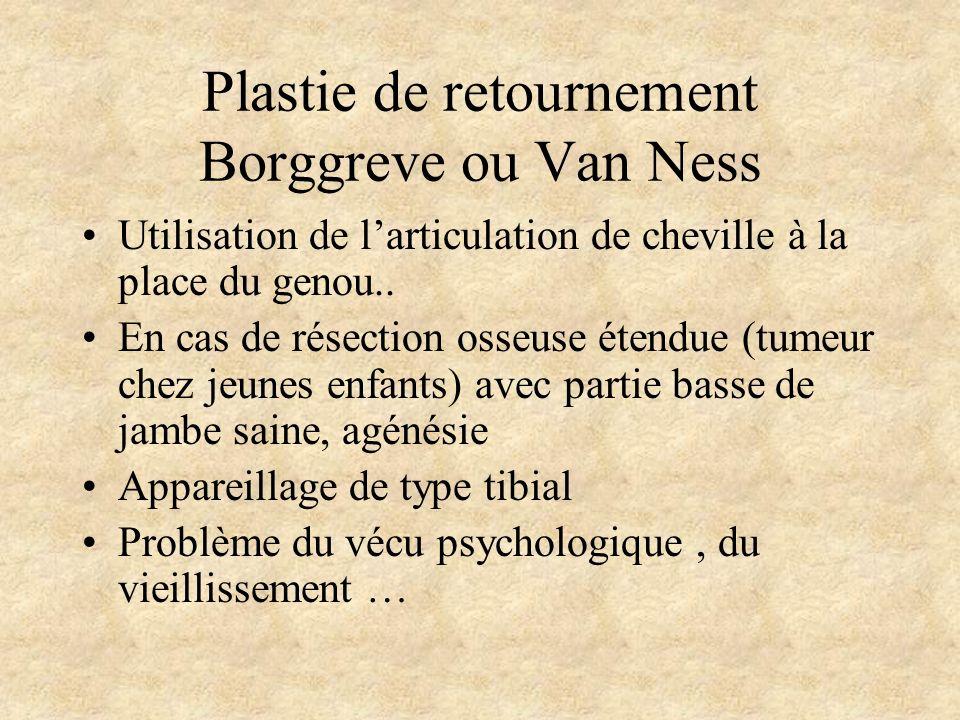 Plastie de retournement Borggreve ou Van Ness Utilisation de larticulation de cheville à la place du genou.. En cas de résection osseuse étendue (tume