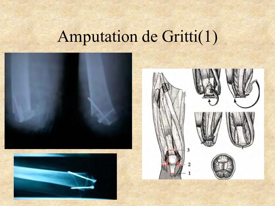 Amputation de Gritti(1)