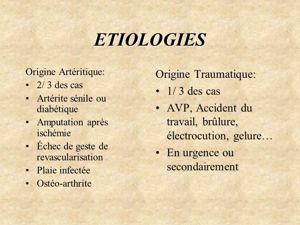 ETIOLOGIES Origine Artéritique: 2/ 3 des cas Artérite sénile ou diabétique Amputation après ischémie Échec de geste de revascularisation Plaie infecté