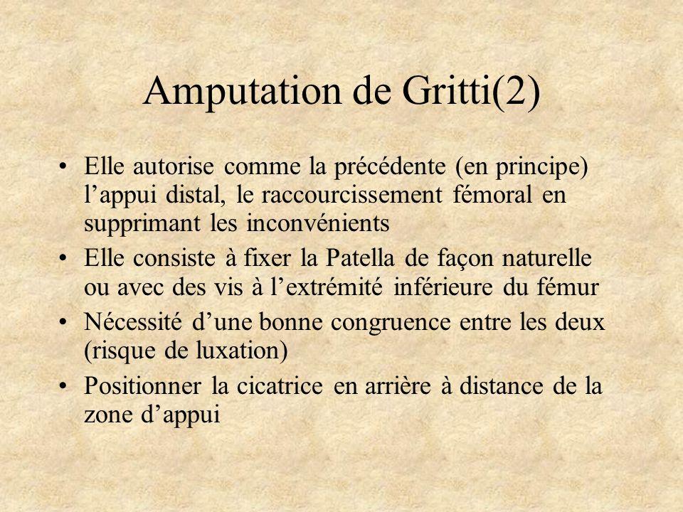 Amputation de Gritti(2) Elle autorise comme la précédente (en principe) lappui distal, le raccourcissement fémoral en supprimant les inconvénients Ell