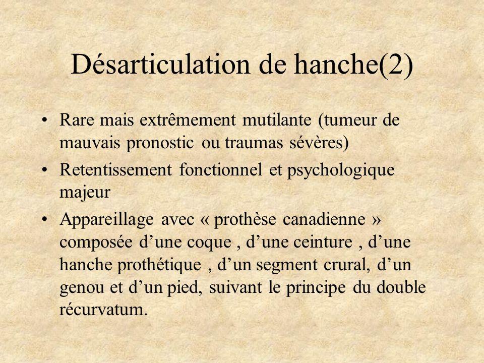 Désarticulation de hanche(2) Rare mais extrêmement mutilante (tumeur de mauvais pronostic ou traumas sévères) Retentissement fonctionnel et psychologi