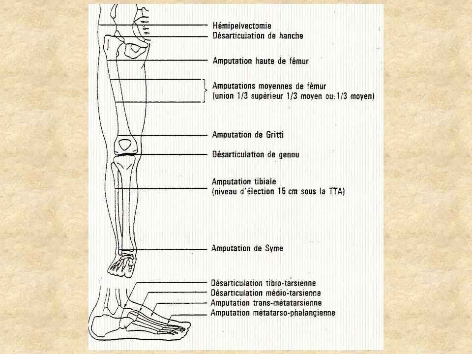 Amputations dorteils(1)