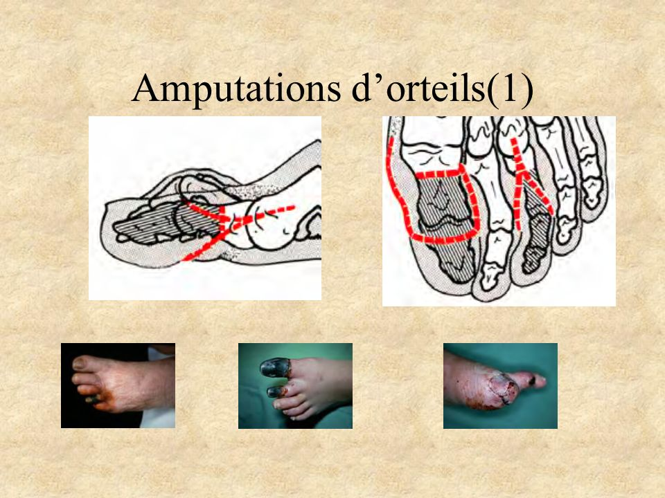 Amputations dorteils(2) Répercussions fonctionnelles modestes plus importantes cependant si amputation de lhallux Conséquence sur déroulement du pas Causes: raideur articulaire,diminution de la propulsion (Hallux), cicatrices adhérentes, douleurs, plaies persistantes