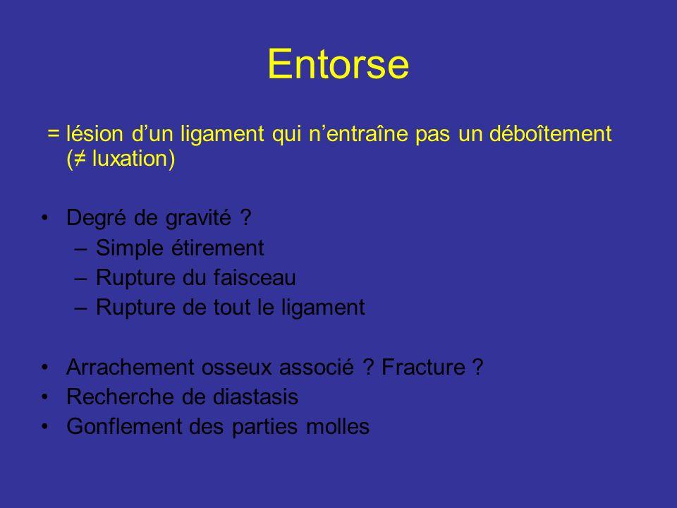 Entorse = lésion dun ligament qui nentraîne pas un déboîtement ( luxation) Degré de gravité .