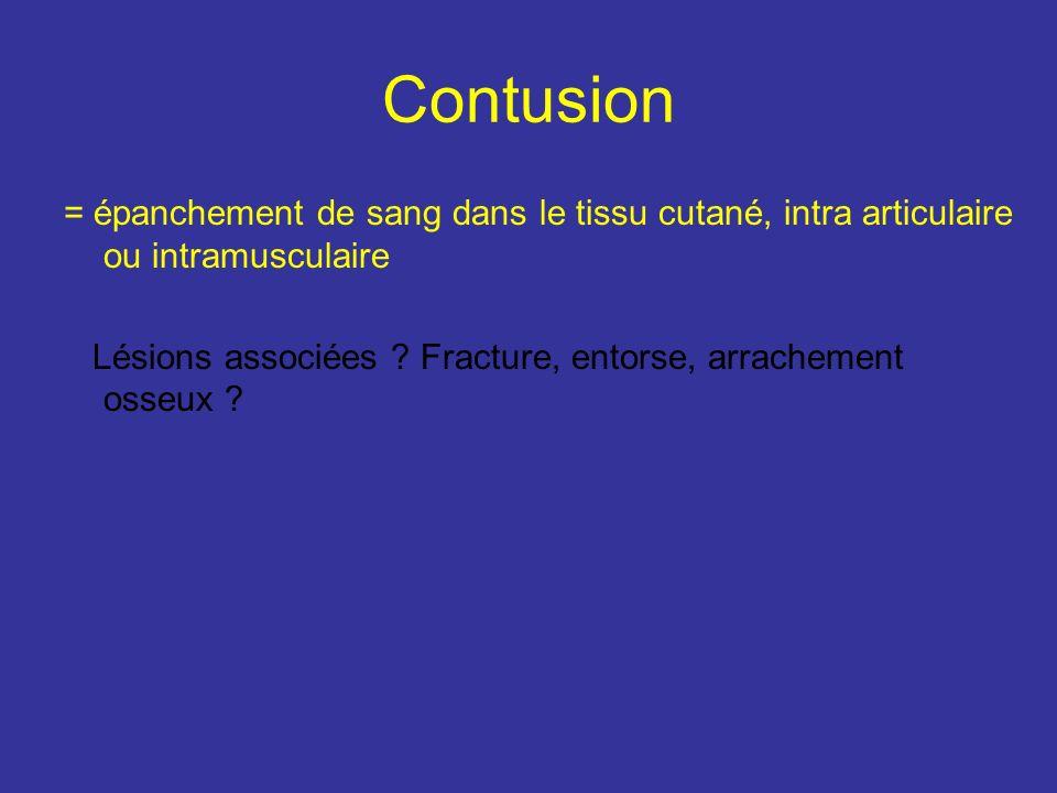 Contusion = épanchement de sang dans le tissu cutané, intra articulaire ou intramusculaire Lésions associées ? Fracture, entorse, arrachement osseux ?