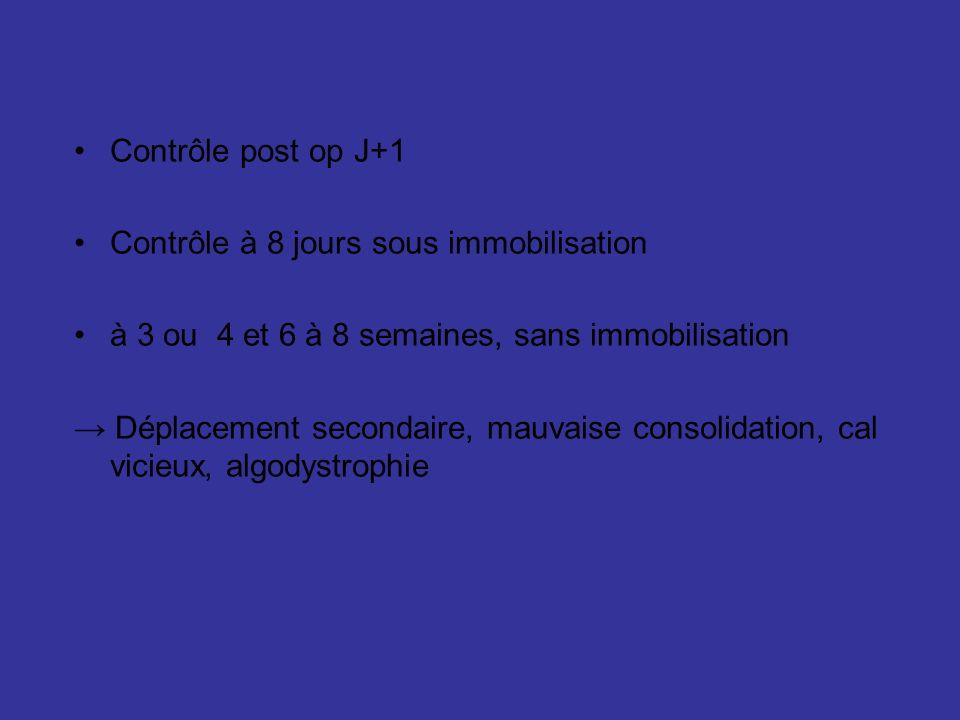 Contrôle post op J+1 Contrôle à 8 jours sous immobilisation à 3 ou 4 et 6 à 8 semaines, sans immobilisation Déplacement secondaire, mauvaise consolidation, cal vicieux, algodystrophie
