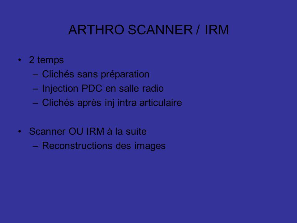 ARTHRO SCANNER / IRM 2 temps –Clichés sans préparation –Injection PDC en salle radio –Clichés après inj intra articulaire Scanner OU IRM à la suite –Reconstructions des images