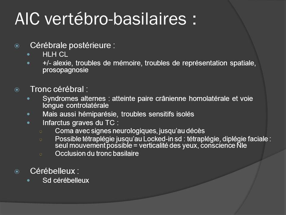 AIC vertébro-basilaires : Cérébrale postérieure : HLH CL +/- alexie, troubles de mémoire, troubles de représentation spatiale, prosopagnosie Tronc cér