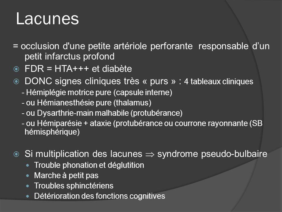 Lacunes = occlusion d'une petite artériole perforante responsable dun petit infarctus profond FDR = HTA+++ et diabète DONC signes cliniques très « pur