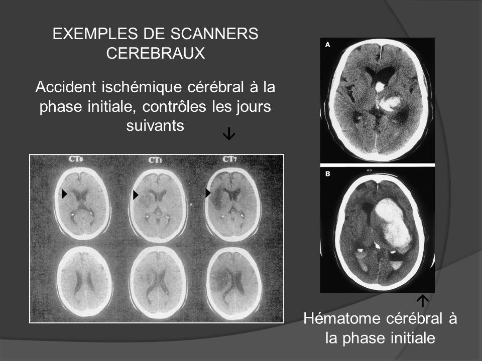 Accident ischémique cérébral à la phase initiale, contrôles les jours suivants Hématome cérébral à la phase initiale EXEMPLES DE SCANNERS CEREBRAUX