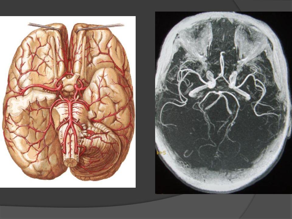 Thrombose veineuse cérébrale : Céphalée dHTIC, signes neurologiques focaux, crises dépilepsie TDM + IV ou IRM avec ARM veineuse Anticoagulation ++, traitement étiologique, symptomatique (dont antiépileptique)