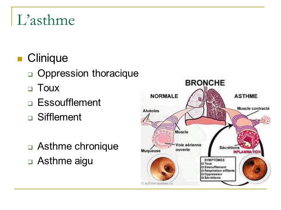 Lasthme Clinique Oppression thoracique Toux Essoufflement Sifflement Asthme chronique Asthme aigu