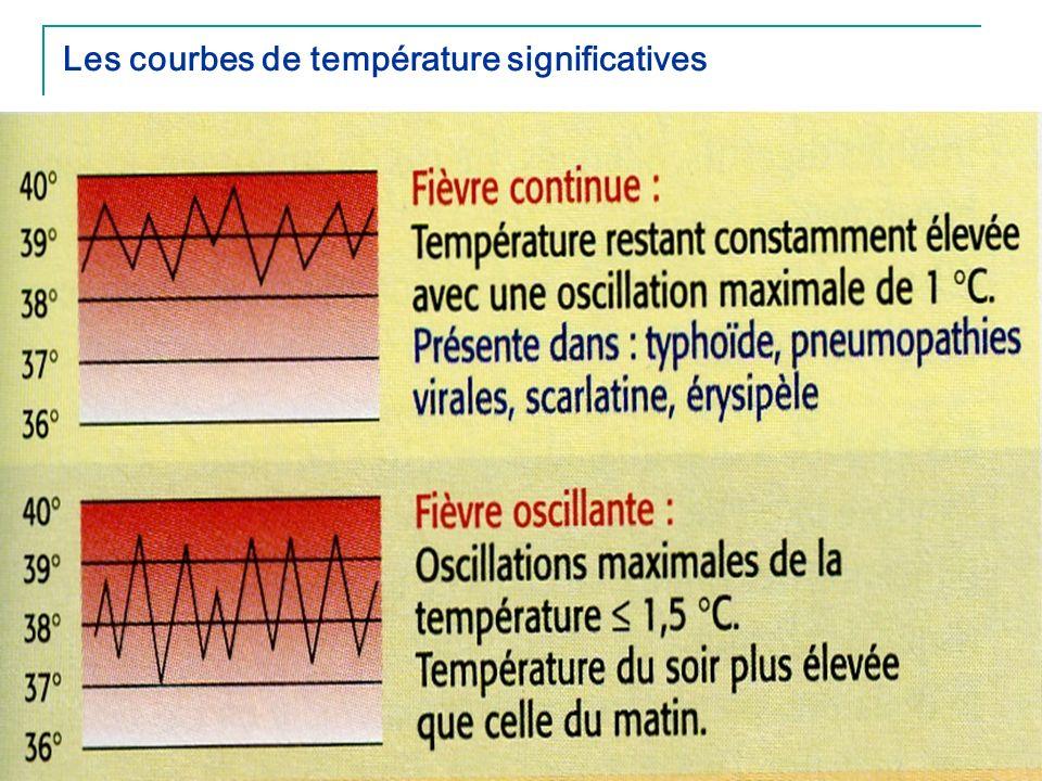 43 Les courbes de température significatives