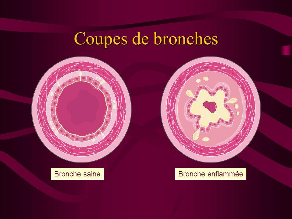 PHYSIOPATOLOGIE Trois mécanismes : spasme musculaire inflammation bronchique hypersécrétion muqueuse Conséquence : obstruction bronchique