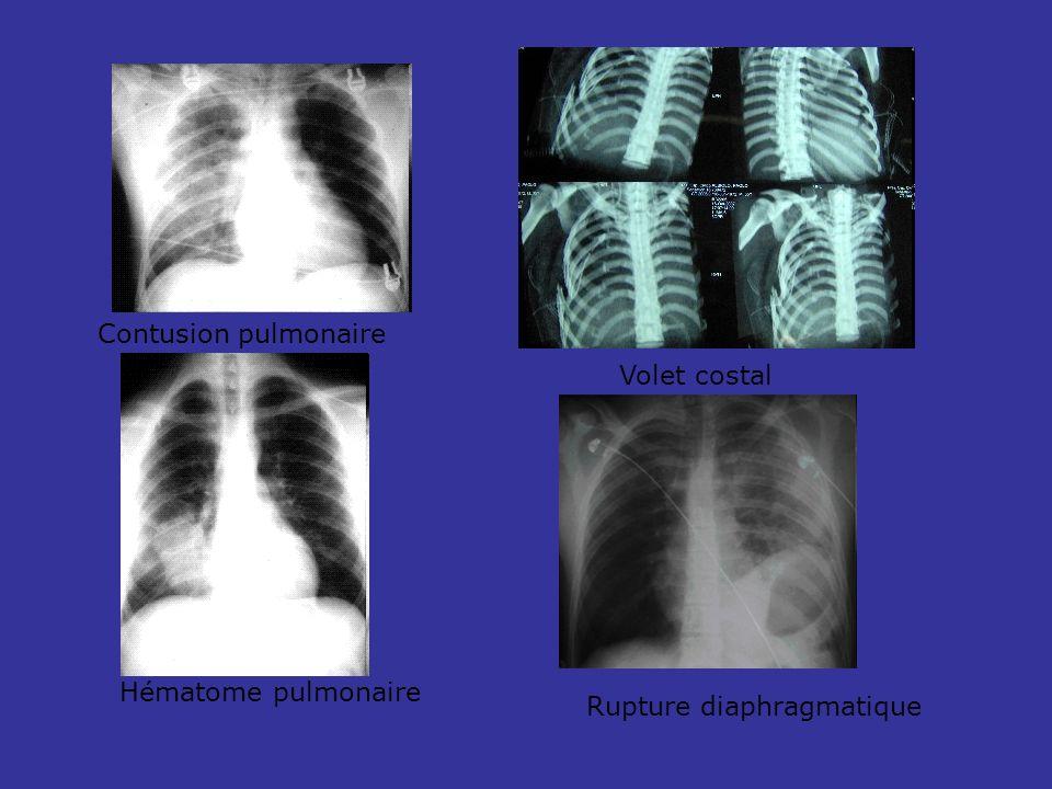 Contusion pulmonaire Hématome pulmonaire Volet costal Rupture diaphragmatique