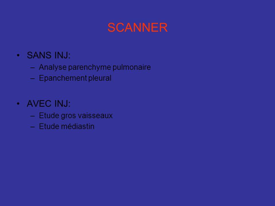 SCANNER SANS INJ: –Analyse parenchyme pulmonaire –Epanchement pleural AVEC INJ: –Etude gros vaisseaux –Etude médiastin