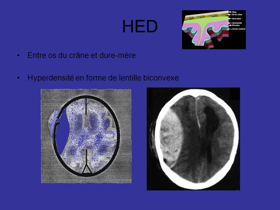 HED Entre os du crâne et dure-mère Hyperdensité en forme de lentille biconvexe