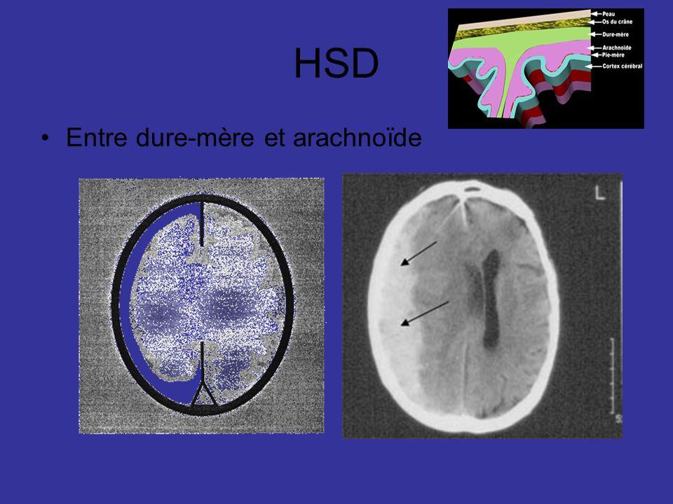 HSD Entre dure-mère et arachnoïde