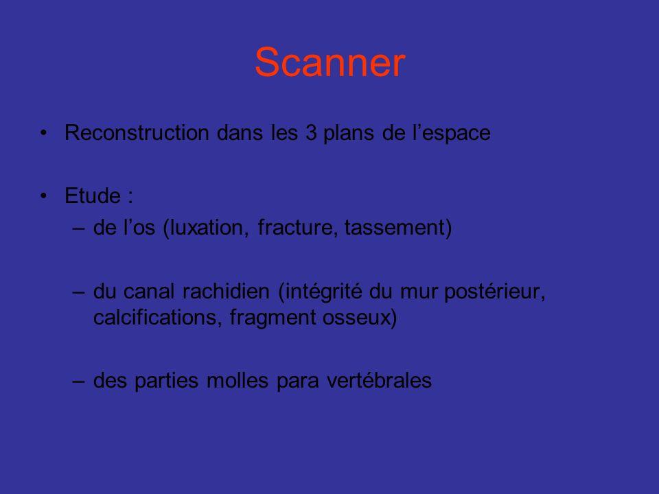 Scanner Reconstruction dans les 3 plans de lespace Etude : –de los (luxation, fracture, tassement) –du canal rachidien (intégrité du mur postérieur, c