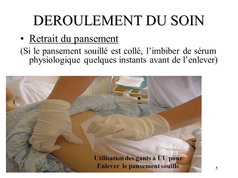 5 DEROULEMENT DU SOIN Retrait du pansement (Si le pansement souillé est collé, limbiber de sérum physiologique quelques instants avant de lenlever) Ut