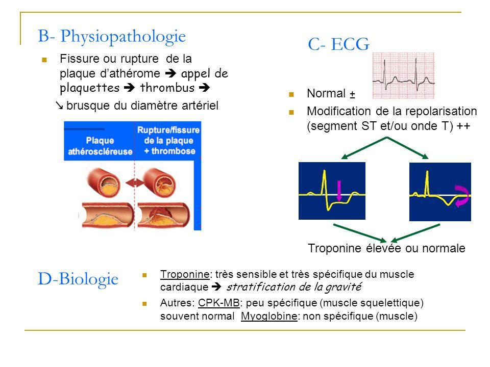 Fissure ou rupture de la plaque dathérome appel de plaquettes thrombus brusque du diamètre artériel B- Physiopathologie D-Biologie Troponine: très sen