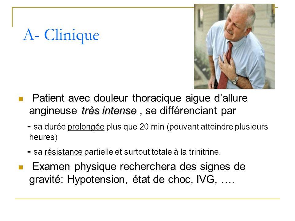 très intense Patient avec douleur thoracique aigue dallure angineuse très intense, se différenciant par - sa durée prolongée plus que 20 min (pouvant