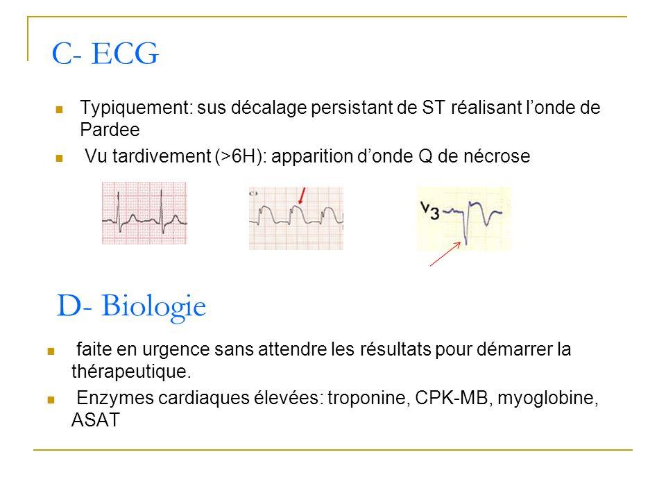 Typiquement: sus décalage persistant de ST réalisant londe de Pardee Vu tardivement (>6H): apparition donde Q de nécrose C- ECG D- Biologie faite en u