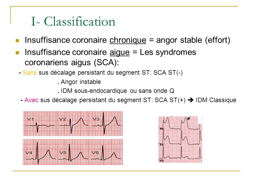 Insuffisance coronaire chronique = angor stable (effort) Insuffisance coronaire aigue = Les syndromes coronariens aigus (SCA): - Sans sus décalage per