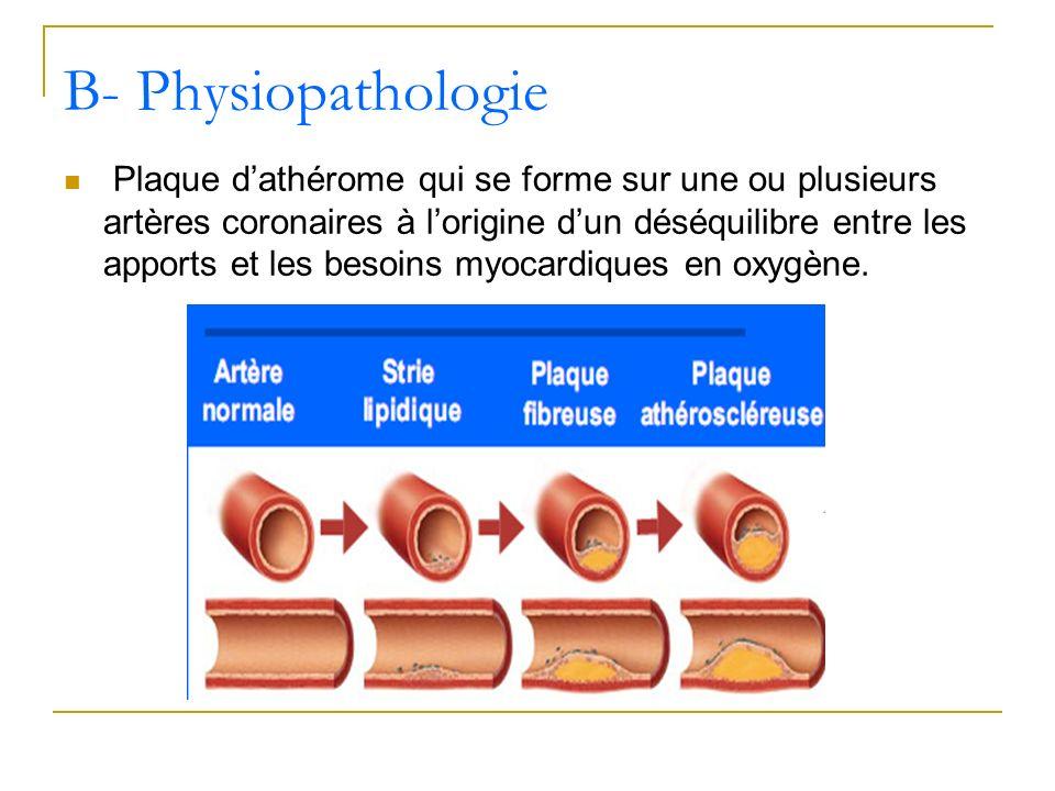 Plaque dathérome qui se forme sur une ou plusieurs artères coronaires à lorigine dun déséquilibre entre les apports et les besoins myocardiques en oxy