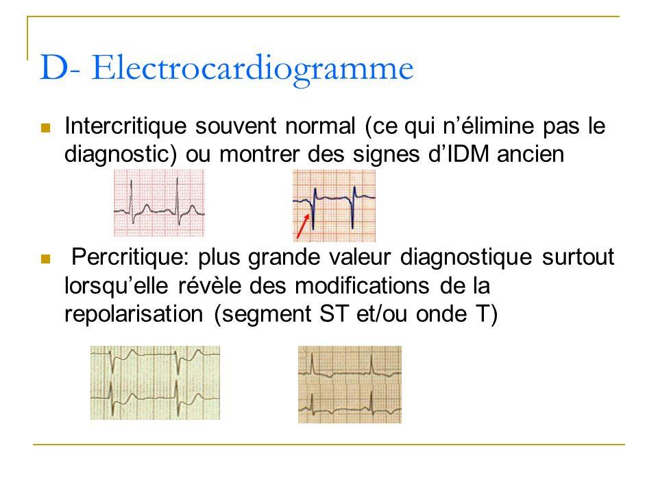 Intercritique souvent normal (ce qui nélimine pas le diagnostic) ou montrer des signes dIDM ancien Percritique: plus grande valeur diagnostique surtou