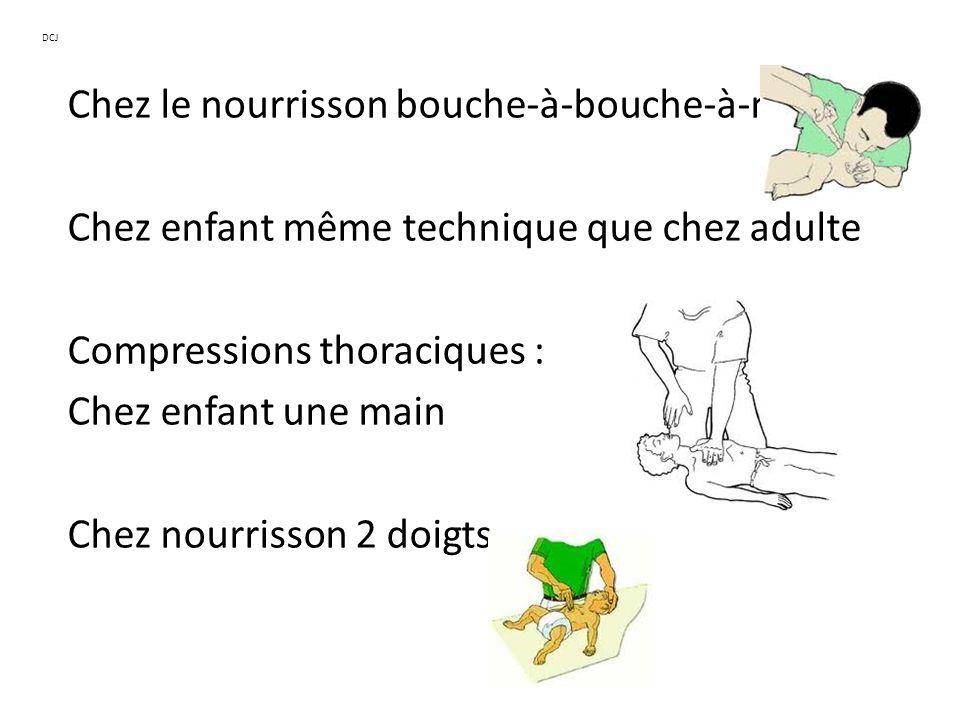 Chez le nourrisson bouche-à-bouche-à-nez Chez enfant même technique que chez adulte Compressions thoraciques : Chez enfant une main Chez nourrisson 2