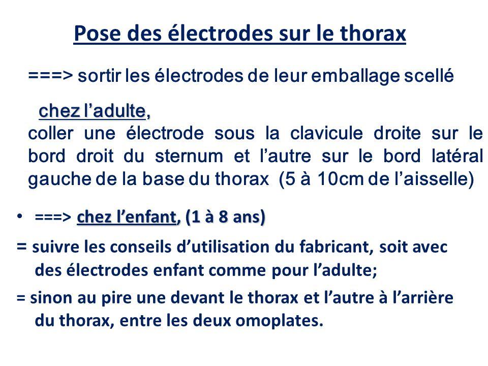 ===> sortir les électrodes de leur emballage scellé chez ladulte, coller une électrode sous la clavicule droite sur le bord droit du sternum et lautre