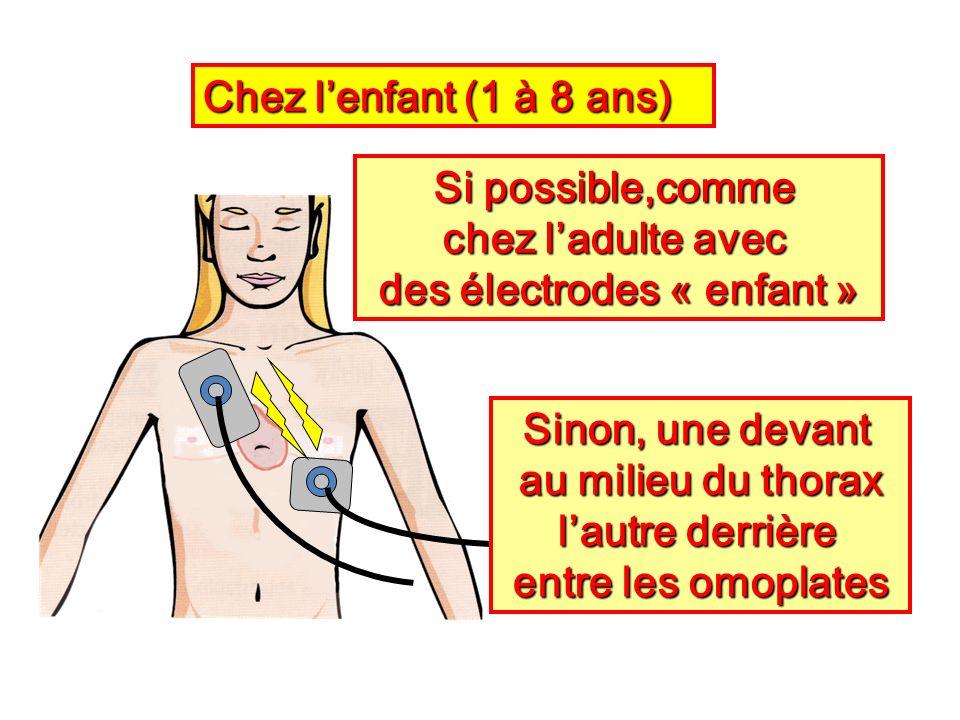 Si possible,comme chez ladulte avec des électrodes « enfant » Chez lenfant (1 à 8 ans) Sinon, une devant au milieu du thorax lautre derrière entre les