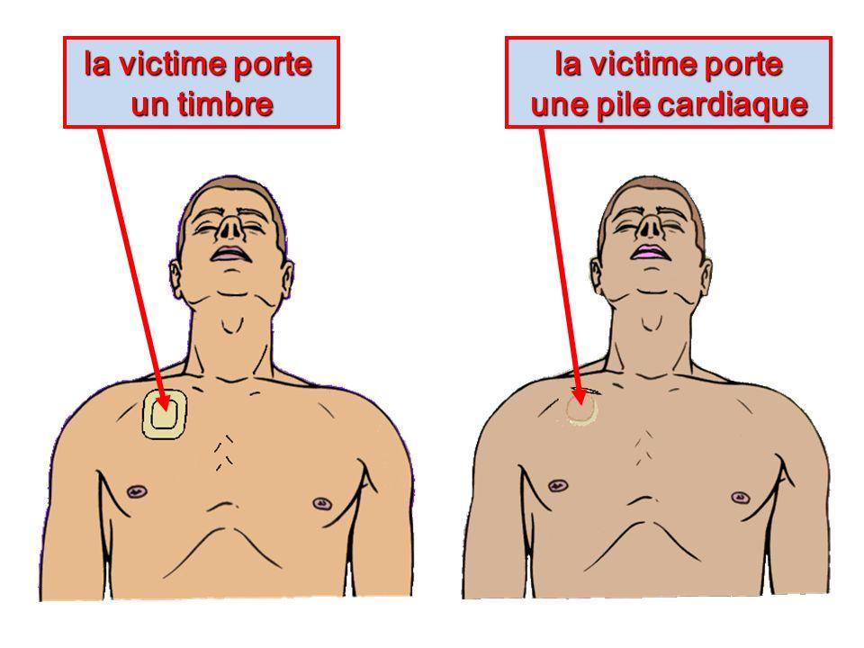 la victime porte un timbre la victime porte une pile cardiaque